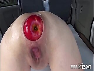 Extreme anal fisting and huge insertions